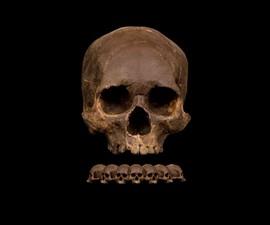 Human Skull Chocolates