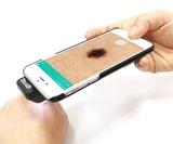 Skiary SK-3 Smartphone Dermatoscope