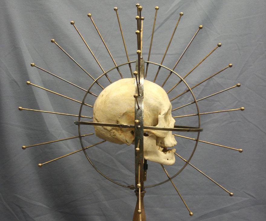 craniomaxillofacial osteosynthesis