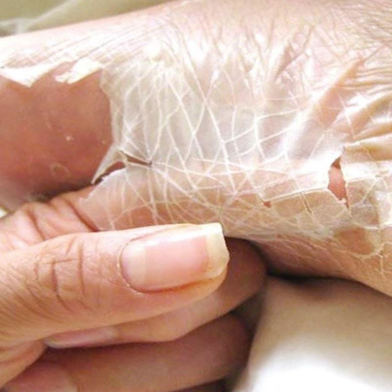 Skin Is Peeling After Cast Off Natural Remedies