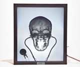 X-Ray Lightbox - Doctor Feelgood