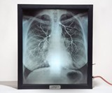 X-Ray Lightbox - Internal Medicine