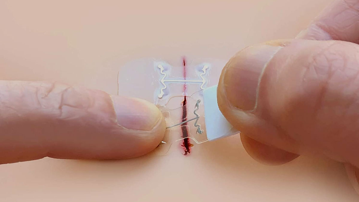 microMend Emergency Wound Closures