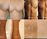 SmoothTech>Pro Male Hair Removal System