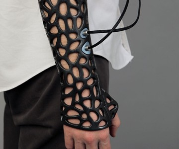 Osteoid - 3D Printed Ultrasound Cast