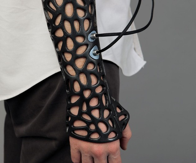 Osteoid - 3D Printed Ultrasound Cast
