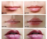 Electric Lip Plumper